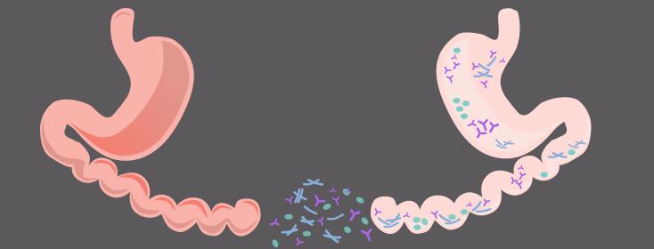 Can Fecal Transplants Help IBS?